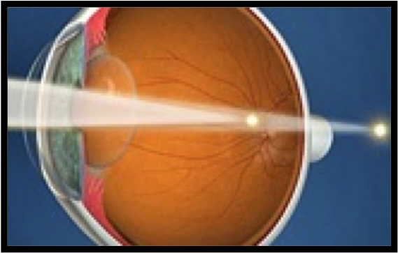 Astigmatism causes blurring of vision at both distance and near