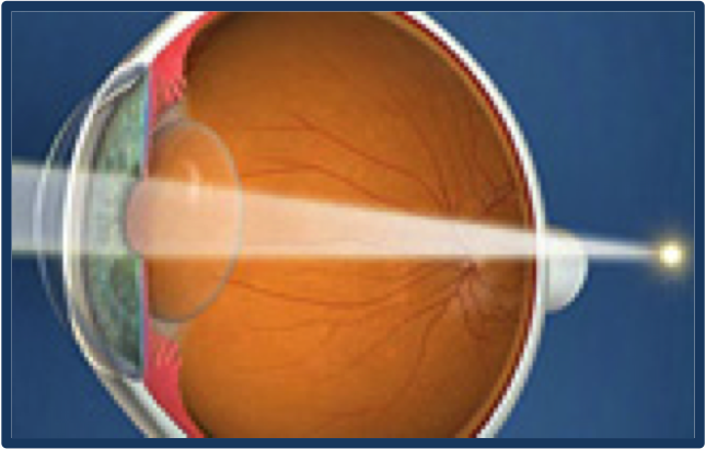 Hyperopia causes blurred vision at near