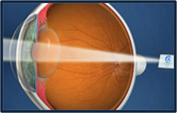 Presbyopia results in poor vision at near
